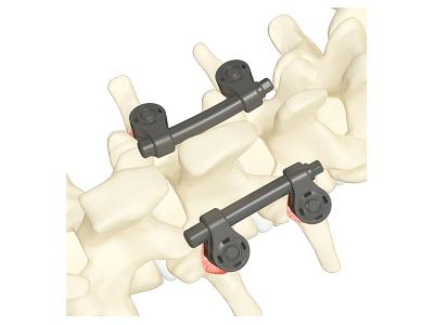 GTS型脊柱通用后路内固定器